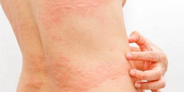 how-to-get-rid-of-hives