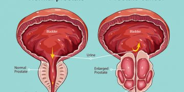 prostate-cancer