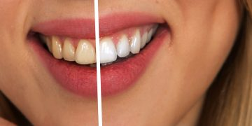 what food makes your teeth white